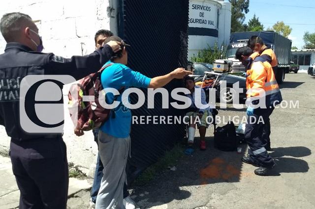 Agreden con ácido a joven Indigente en el sur de Puebla