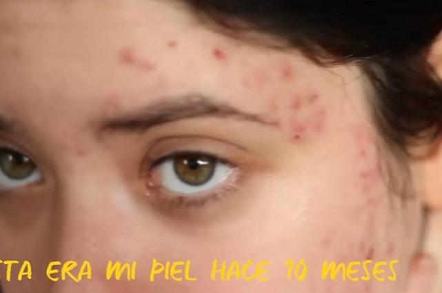 4 Remedios caseros para tratar de eliminar el acné