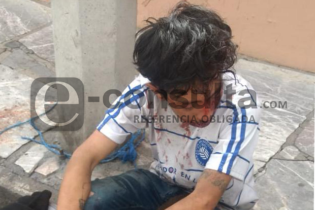 Presunto ladrón golpeado por vecinos, ahora en Santa María