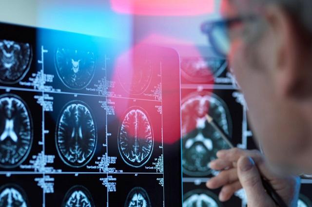 ¿Afecta el SARS-CoV-2 al cerebro?