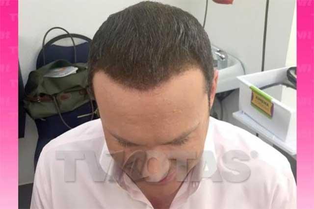 Pagó Alan Tacher 200 mil pesos para que le injertaran 2 mil cabellos