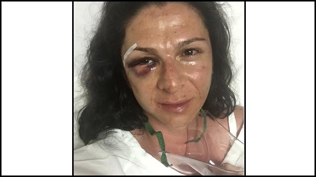 Ordena Juez liberar al agresor de Ana Guevara