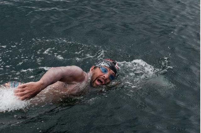 Medusas atacan a Antonio Argüelles mientras nadaba en el Mar de Cortés