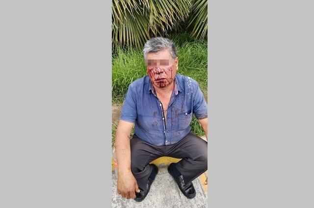 Disputa por servicio funerario en La Margarita deja un golpeado