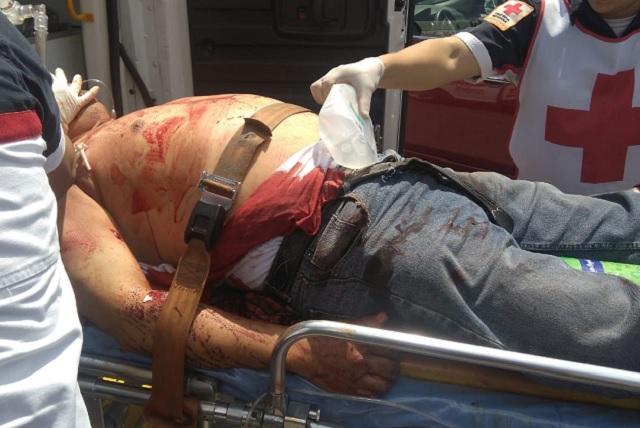 Atacan a balazos a un hombre en el centro histórico de Puebla