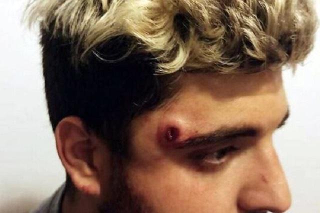 Jugador de Rugby recibe balazo en la cabeza y sufre apenas un 'raspón'