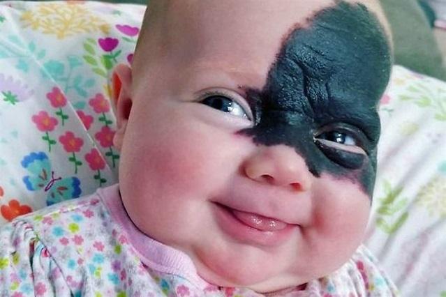 Nació con una marca en la cara y sus padres la llaman pequeña superheroína