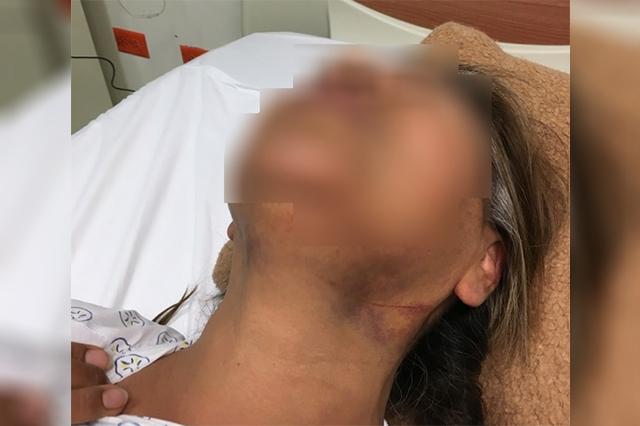 Mujer acusa burlas de policías tras intento de feminicidio
