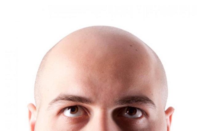 Calvicie no tiene cura: afecta a 5 de cada 10 hombres de 20 a 30 años