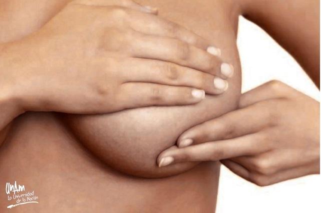 La mortalidad por cáncer de mama aumenta en México