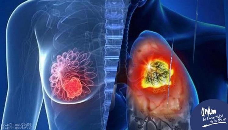 Cáncer de mama y de pulmón, los más frecuentes en el mundo