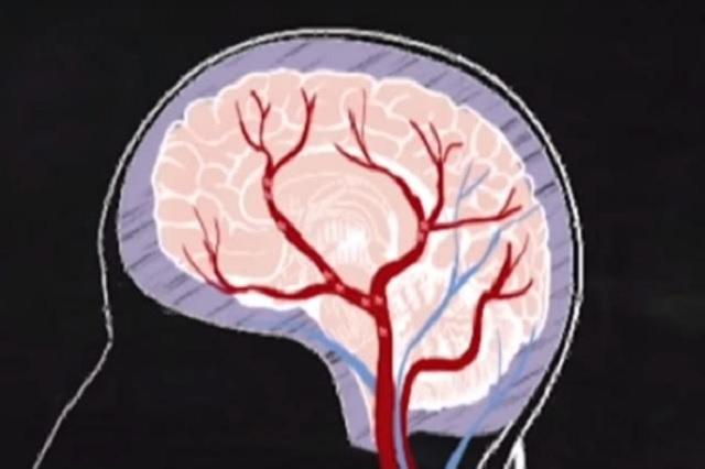 5 consejos para evitar el envejecimiento del cerebro