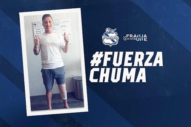 Jugador del Puebla, Alejandro Chumacero, operado con éxito