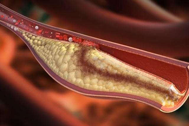 6 alimentos que ayudan a bajar el colesterol