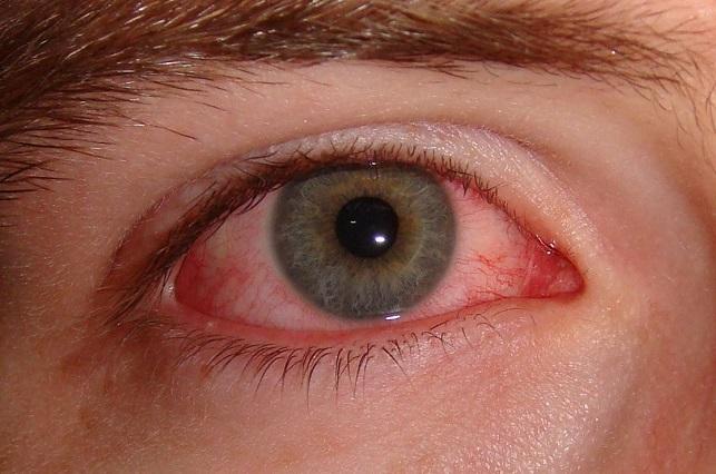 5 remedios caseros para aliviar la conjuntivitis u ojo rojo