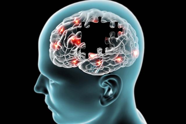 En 2050 habrá 115 millones de personas con alguna demencia