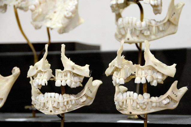 La dentadura, testigo confiable para identificación de cuerpos