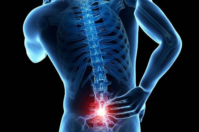 Uso de computadoras y celulares aumenta el riesgo de dolor lumbar