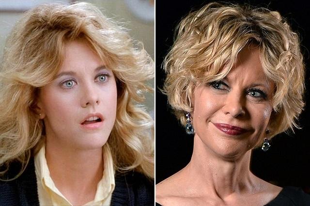 15 famosos en fotos antes y después de someterse a cirugías estéticas
