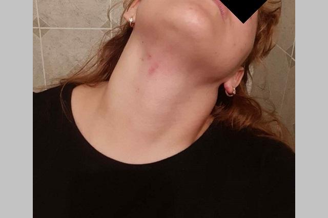Acusan a alumno de Ceuni de golpear a su novia