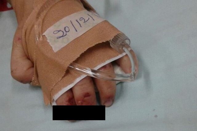 Testimonio de hermano reveló maltrato a niña muerta en Atlixco