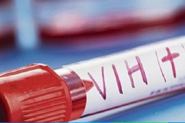 Detectan VIH en 392 personas en Puebla, en primer trimestre