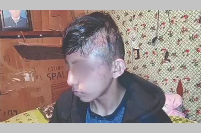 Abre CDH queja por golpiza de policías de Huauchinango a menor