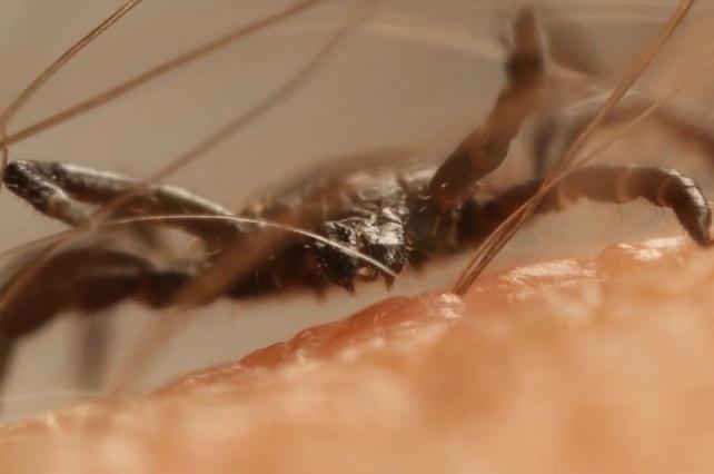 Video en YouTube muestra cómo una garrapata perfora tu piel