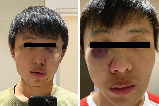 En Londres, golpean brutalmente a estudiante asiático por 'contagiar' coronavirus