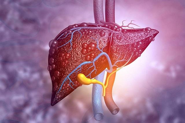 Cada 30 segundos muere una persona por hepatitis o sus complicaciones
