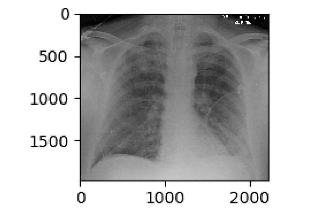 Desarrolla INAOE sistema de diagnóstico rápido del Covid-19