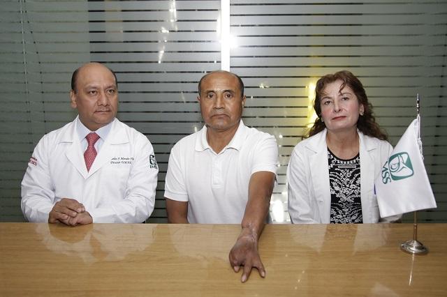 Le salvan la mano en IMSS de Puebla tras accidente