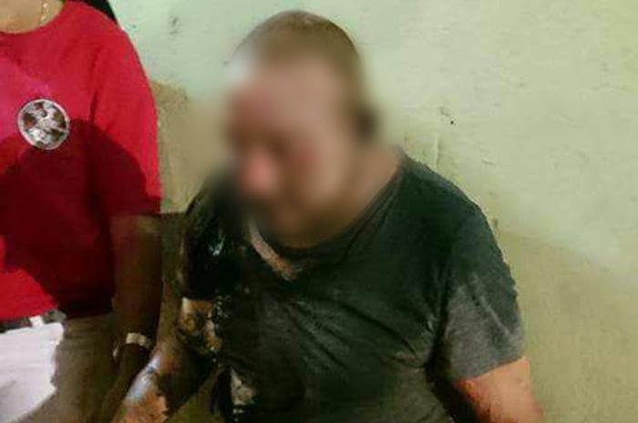Investigan quién es el responsable de prender fuego a indigente en Minantitlán