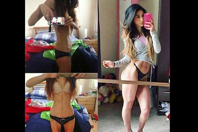 Joven vence la anorexia y ahora presume su cuerpo en redes