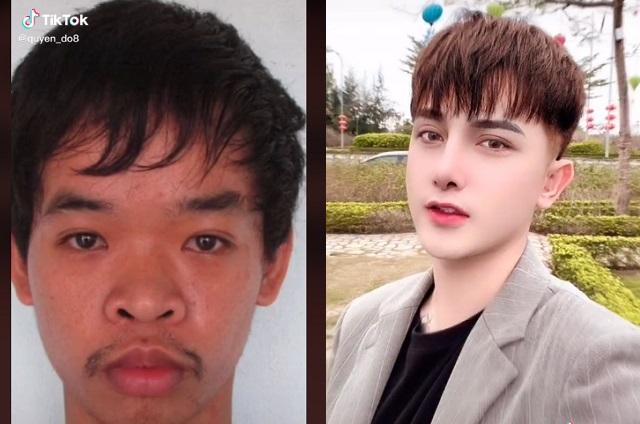 Joven se cambió el rostro con cirugías porque lo rechazaron de un trabajo