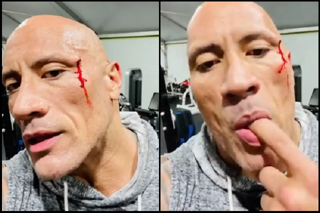 La Roca prueba su propia sangre al lesionarse entrenando