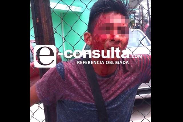 Golpean a otro ladrón; ahora en Xochimehuacán