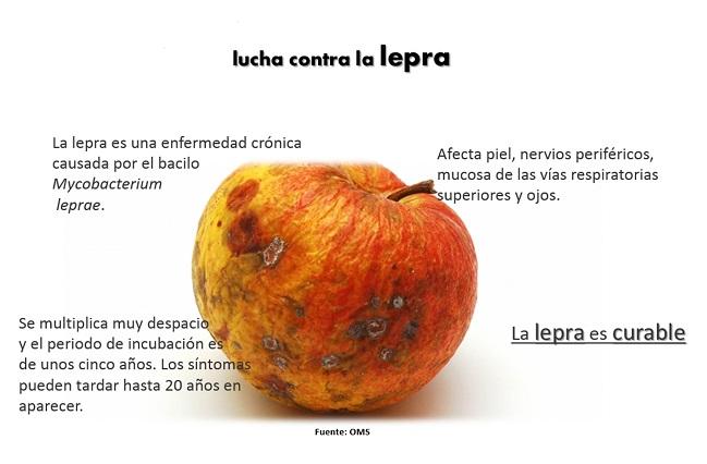 La lepra, una enfermedad aún presente en el mundo: UNAM