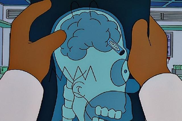 ¿Un Homero Simpson? Joven sobrevive con una llave clavada en la cabeza