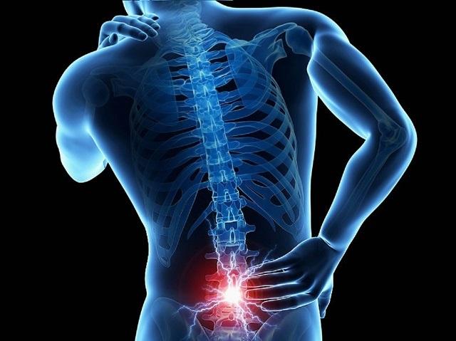 ¿Qué es la lumbalgia, que afecta a 600 millones en el mundo?
