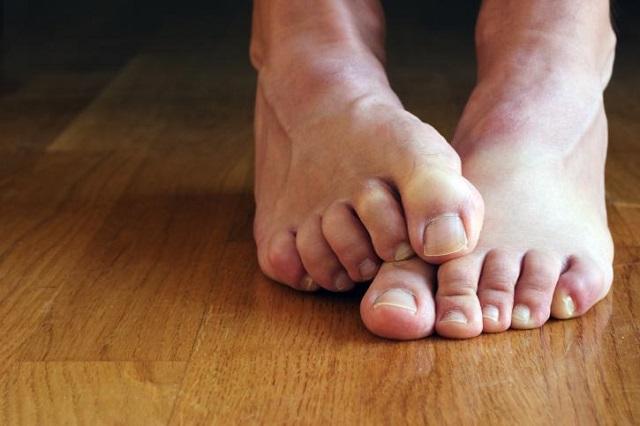 5 tips para combatir el mal olor de los pies