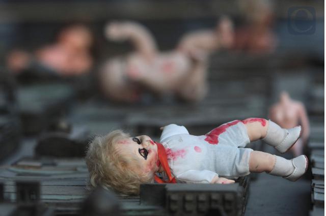 Al mes, 29 menores son lesionados intencionalmente en Puebla