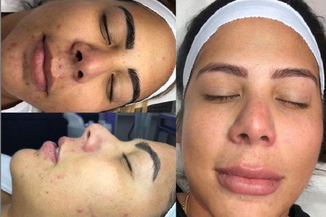 ¿Por qué aparecen manchas en la piel (melasma) y cómo eliminarlas?