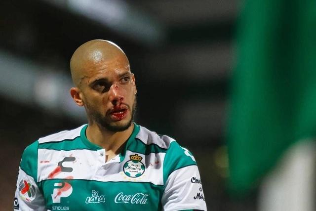 Matheus Dória continuó jugando vs América pese a dislocarse el codo