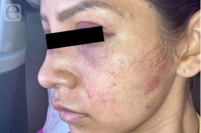 Mujer acusa a su expareja por golpearla en Chiautla