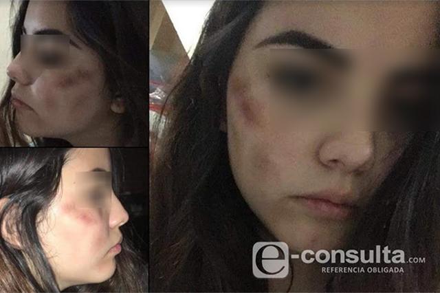Mujer denuncia brutal golpiza durante un asalto en la Ruta 33