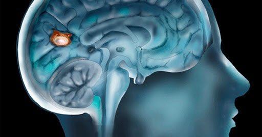 Alertan en Florida  sobre ameba que  destruye el tejido cerebral