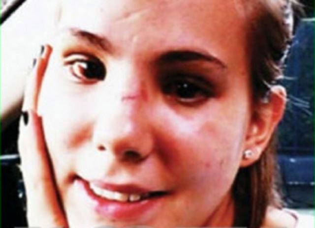 Se recupera nieta de Cantinflas y comparten foto de su rostro