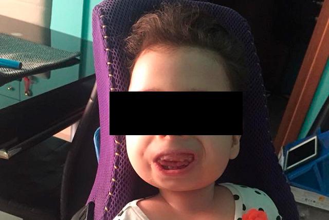 Muere la niña de piedra: En Facebook dicen que corrió a besar a su mamá