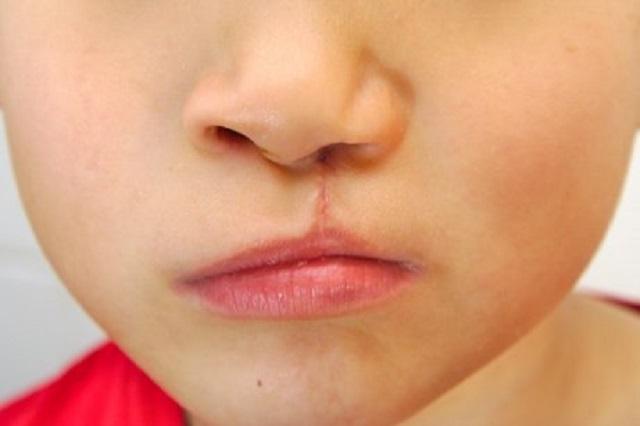 En Puebla, 1 de cada 650 niños nacen con labio hendido